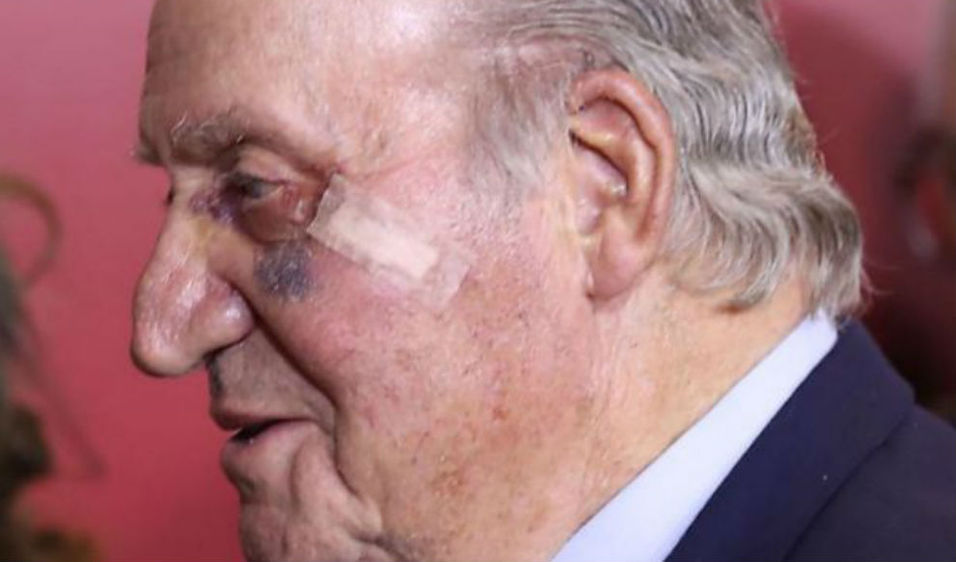 El Rey Juan Carlos Operado De Un Carcinoma En La Mejilla
