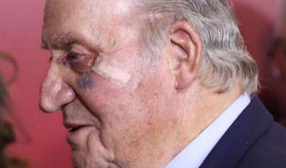 cirugia de carcinoma basocelular en la cara