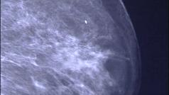 Diez datos que debes conocer sobre el cáncer de mama