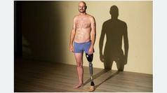 El documental Indestructible narra la decisión de amputarse una pierna tras años de complicaciones