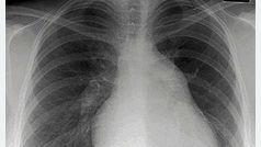 El cáncer de pulmón, en cifras