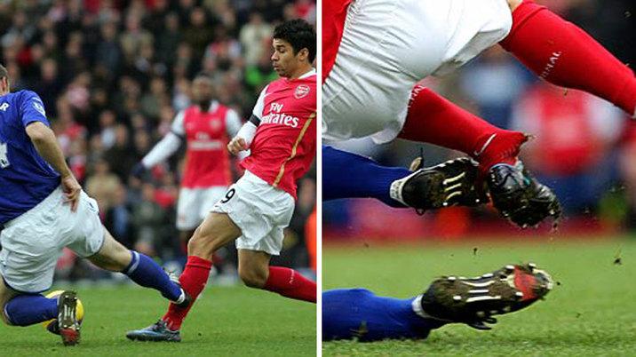 Las lesiones más duras de la historia del fútbol + videos