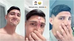 Alan Pulido sufre un aparatoso accidente en la cocina ¡Se destrozó la nariz!