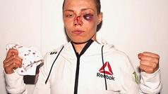 Rose Namajunas acaba su combate contra Jessica Andrade con la cara destrozada... ¡y gana!