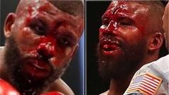El peor corte, y el más sangriento, visto en años en un ring de boxeo
