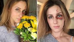 Melissa Gentz agradece el apoyo recibido tras la brutal agresión de su expareja