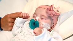 Naiara, la bebé salvada gracias a un trasplante pionero en el mundo