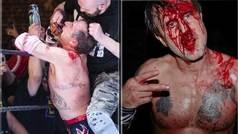 Sangriento combate del actor David Arquette: le intentan cortar la boca con un cortapizzas