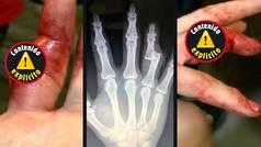Gana su pelea de MMA con la mano rota y un hueso al aire