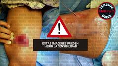 MX: Así se reconstruyó el muslo de Giovani dos Santos