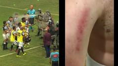 La policía lanza gas pimienta y porrazos y los jugadores muestran las marcas en el vestuario