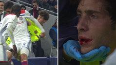 Aouar le rompió el labio a Sergi Roberto de un codazo... ¡y no vio la segunda amarilla!