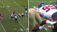 La escalofriante lesión de Alex Smith que lamenta toda la NFL