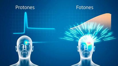 Tratamiento del haz de protones para el cáncer de próstata